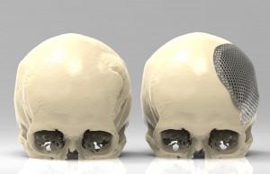 ID222200 Cranioplasty_pre_and_post_surgery